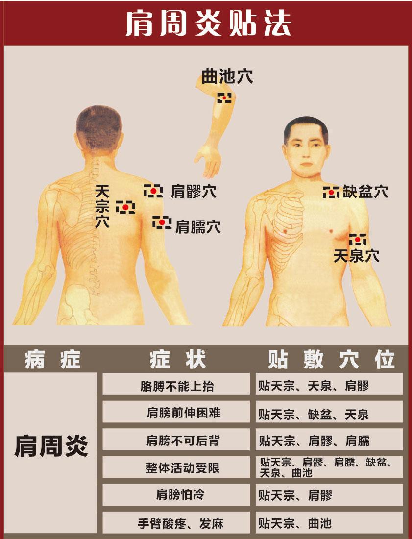 肩周炎膏药穴位贴法