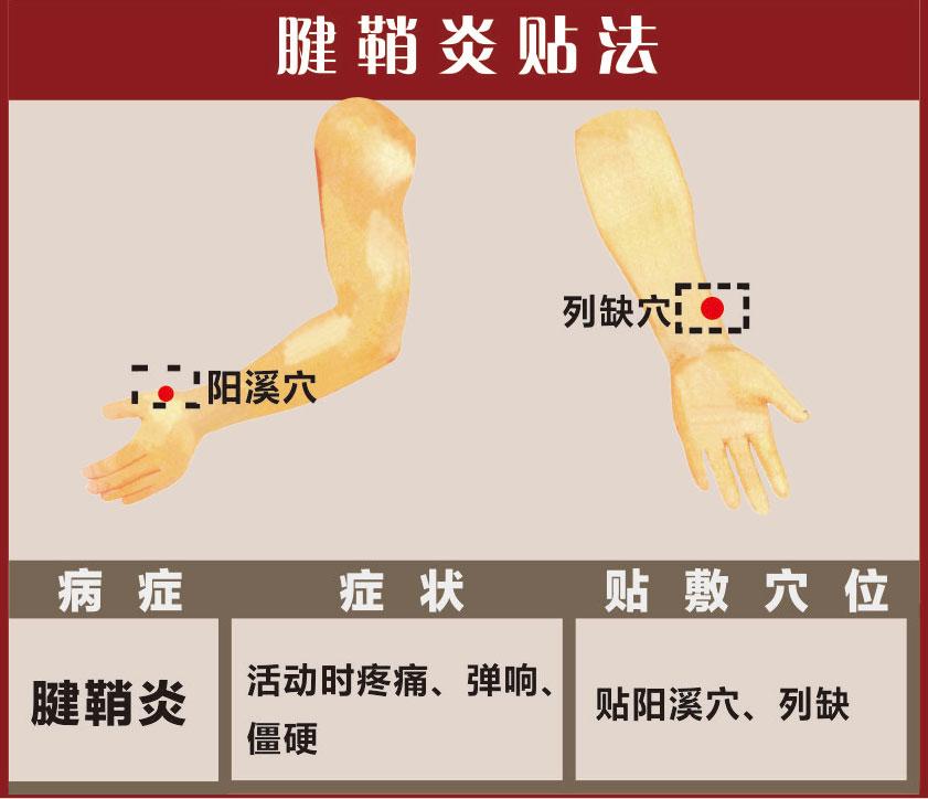 腱鞘炎膏药贴法