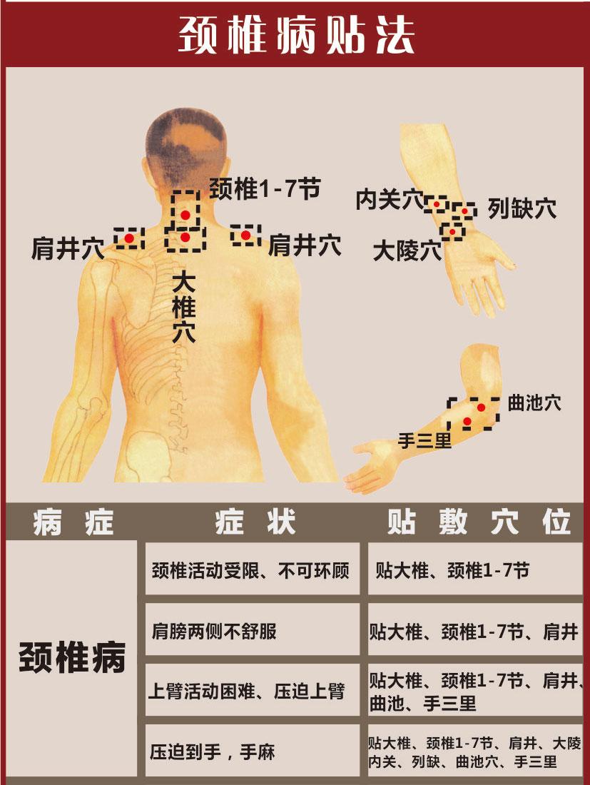 膏药贴颈椎方法
